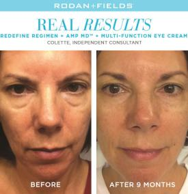 redefine real results collette