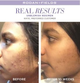 redefine real results katie