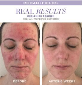 redefine real results meghan