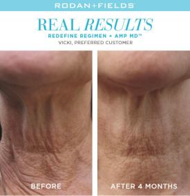 redefine real results vicki
