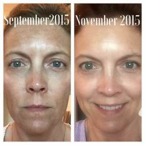 soothe before after 3