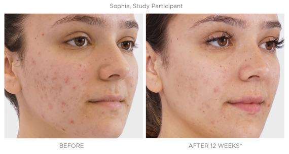 Teen Acne -  The Spotless Solution is Here 4