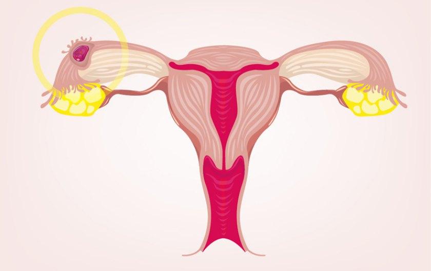 Sarcina incipientă vs Sarcina extrauterină Ginecologie București Dr. Șucu