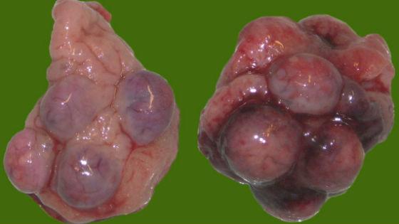 Лечение пиявками поликистоза яичников