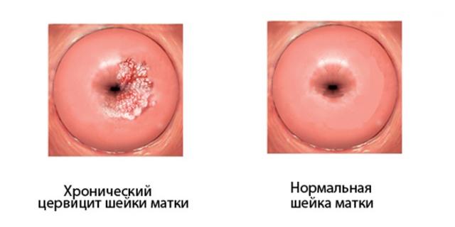 Воспалительный процесс слизистой оболочки в гинекологии. Воспалительный процесс слизистой оболочки рта, лечение. Аднексит, или сальпингоофорит