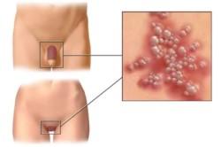 riebalinės cistos ant varpos kaip saugiai padidinti varpą