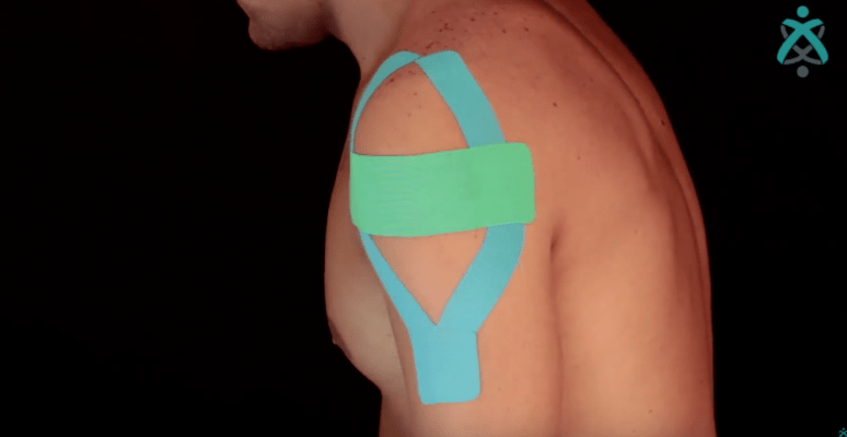 Kinesiosport - Estabilização de ombro