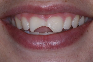 cosmetic before - Cosmetic Dentistry