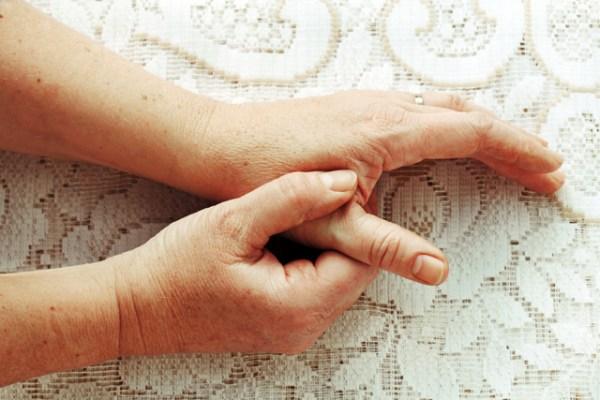 Псориатический артрит: симптомы, лечение, фото ...