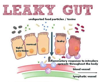 Infographic of what leaky gut syndrome looks like