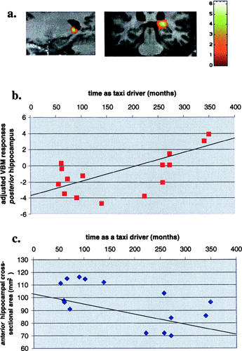 Correlation of volume change with time as a taxi driver. (a Left) Sagittal section. (a Right) Coronal section. The VBM group results are shown superimposed onto the scan of an individual subject selected at random. The bar to the right indicates the Z score level. The volume of gray matter in the right hippocampus was found to correlate significantly with the amount of time spent learning to be and practicing as a licensed London taxi driver, positively in the right posterior hippocampus (b) and negatively in the anterior hippocampus (c).