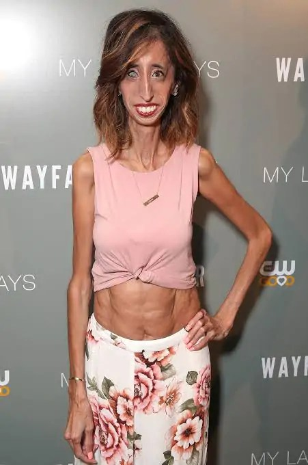 Lizzie Velasquez skinny condition  Skinniest people in the world