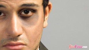 Ilustrasi: memar di wajah