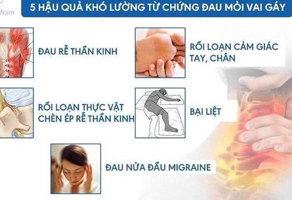 5 hậu quả khó lường từ chứng đau mỏi vai gáy