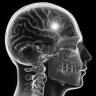 Emicrania e Stroke