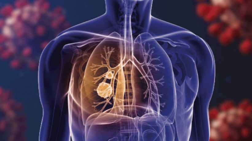 COVID-19 Has Made Early Detection Of Lung Cancer A Challenge