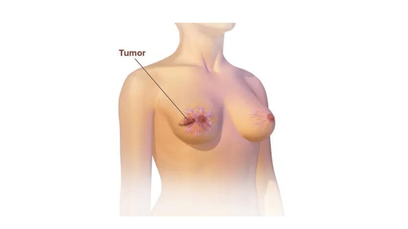 What Are The Symptoms Of Breast Cancer