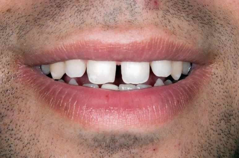 Simply Veneers Smile Makeover 1 Before