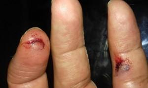 Dedos cortados