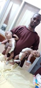 A Doctor At The University Of Ilorin Separated A Conjoined Twins (See Photos) 1