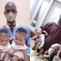 A Doctor At The University Of Ilorin Separated A Conjoined Twins