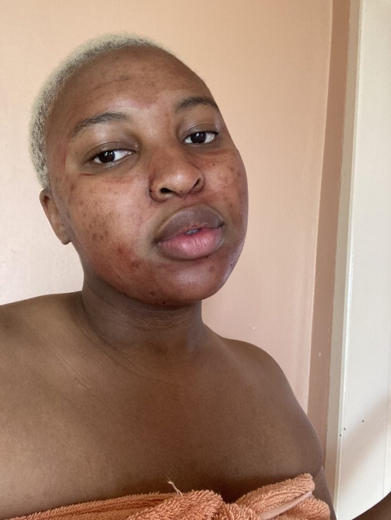 Can You Apply Period Blood On Your Skin? See What This Lady Did (Photo) 4