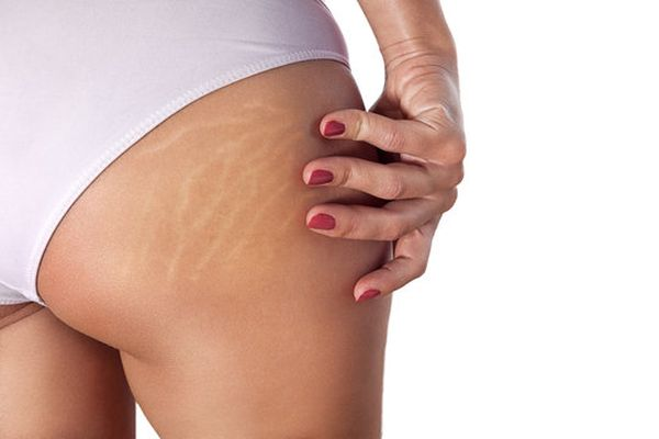 Is Stretch Mark On A Woman Body Something You Fancy Or Totally Dislike?