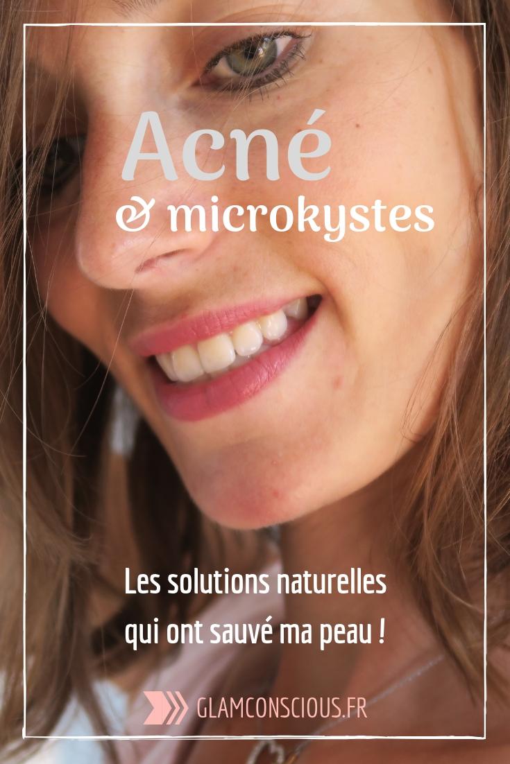 acné hormonale microkyste