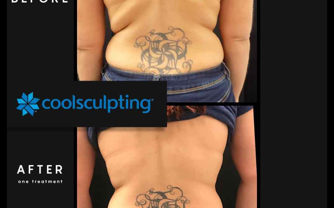 CoolSculpting® or Lucky Strike's