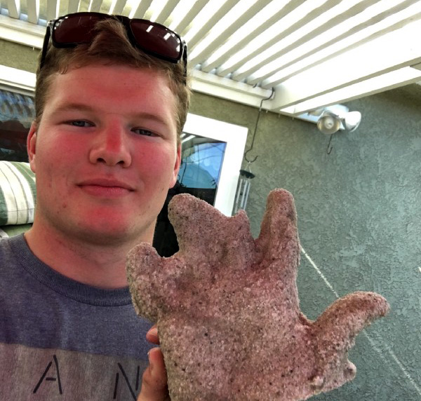 Matthew holding a plaster casting of his hand