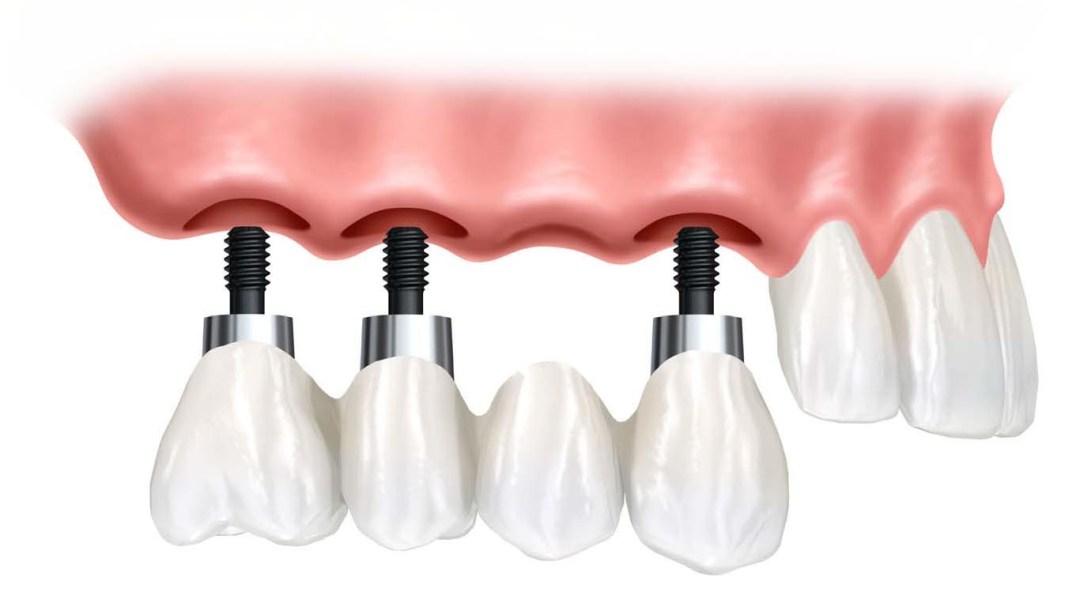 Implant Gigi- Global Estetik Dental Care