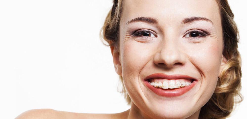 klinik gigi bandung perawatan gigi berbehel