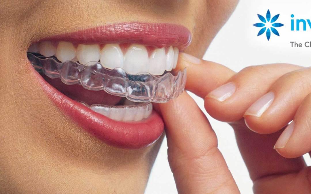 klinik gigi depok apa itu invisalign