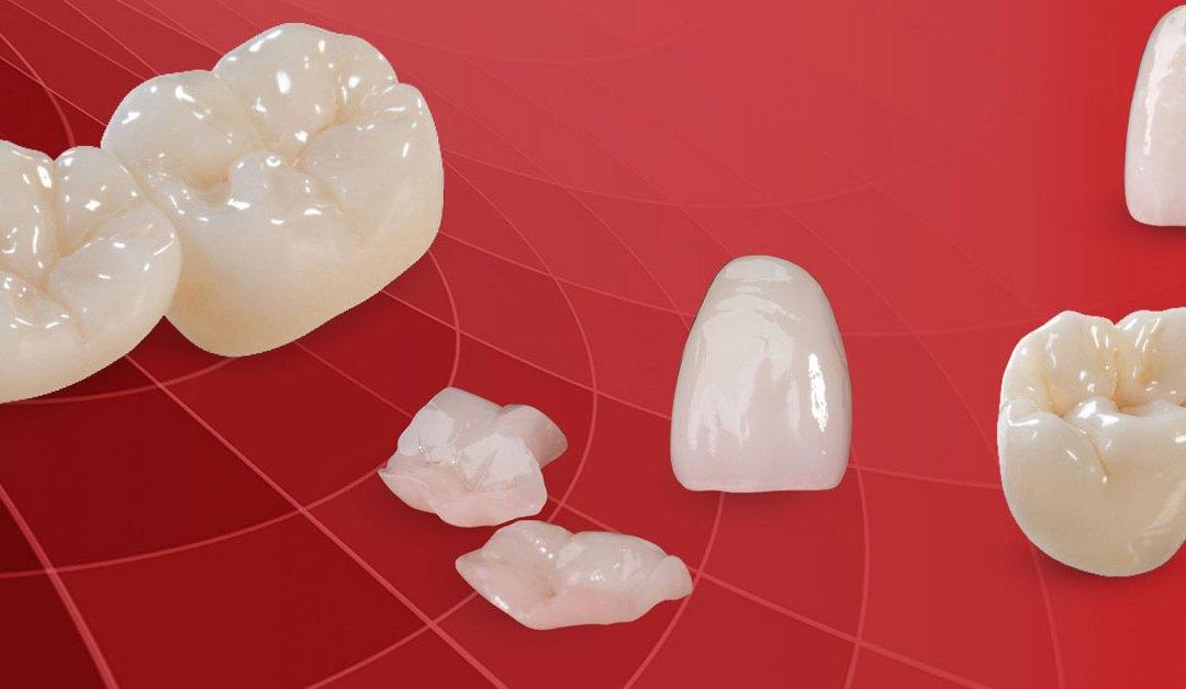 dokter gigi depok behel keramik warna