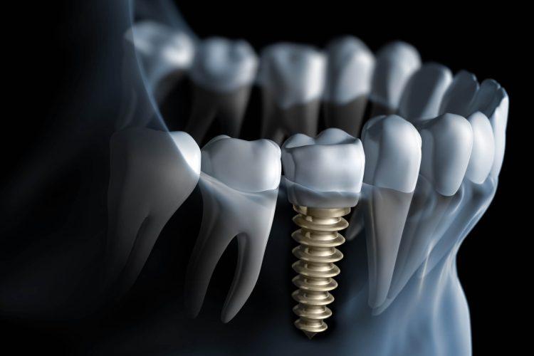klinik gigi depok operasi gigi