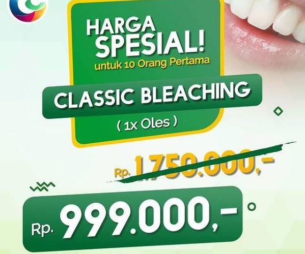 Bleaching gigi Depok