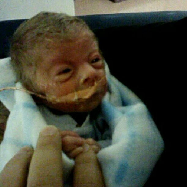 Bryce, Who Has Cornelia de Lange Syndrome, Is A Fighter