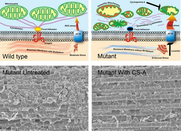 Drosophila type XV-XVIII collagen mutants manifest integrin mediated mitochondrial dysfunction, which is improved by cyclosporin A and losartan.. Global Medical Discovery