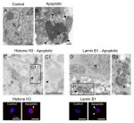 From the nucleus to the plasma membrane: translocation of the nuclear proteins histone H3 and lamin B1 in apoptotic microglia. - Global Medical Discovery