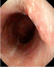 Endoscopic-assessment-management-early-esophageal-adenocarcinoma-global-medical-discovery