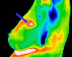 A simple and efficient method for breast cancer diagnosis based on infrared thermal imaging.- . Global Medical Discovery
