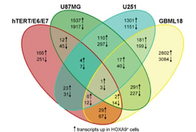 A transcriptomic signature mediated by HOXA9 promotes human glioblastoma initiation, aggressiveness and resistance to temozolomide. Global Medical Discovery