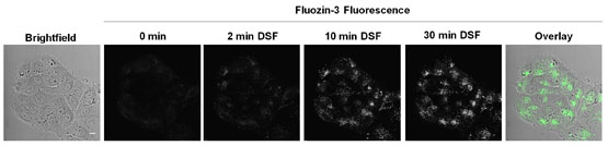 Disulfiram-induced cytotoxicity and endo-lysosomal sequestration of zinc in breast cancer cells. Global Medical Discovery