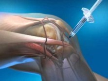 Adipose Derived Stromal Cell Injections for Pain Management of Osteoarthritis in Human Knee Joint. Global Medical Discovery feature