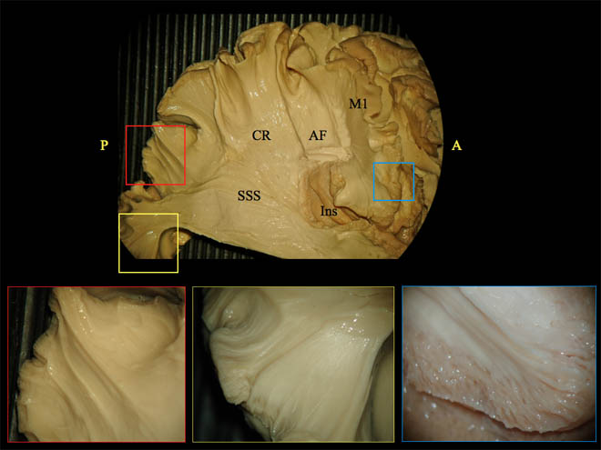 use of cerebral perfusion immersion-fixation process for subsequent white matter dissection. Global Medical Discovery