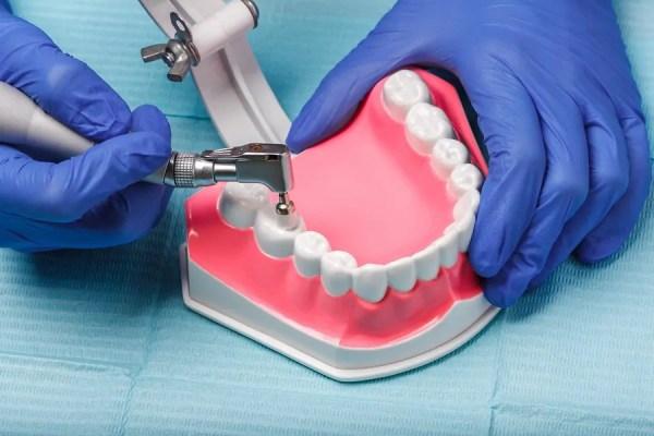 Dental-Endodontics