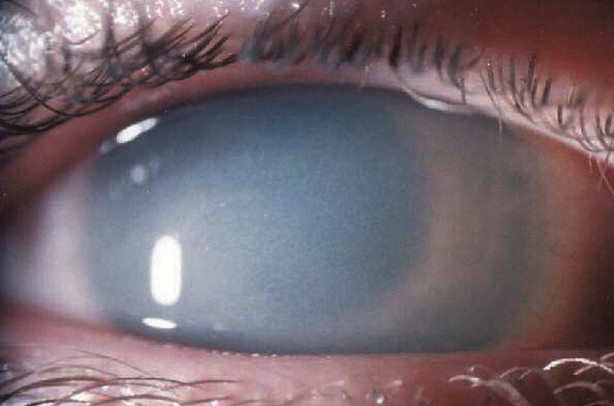 MPS IHS corneal closer