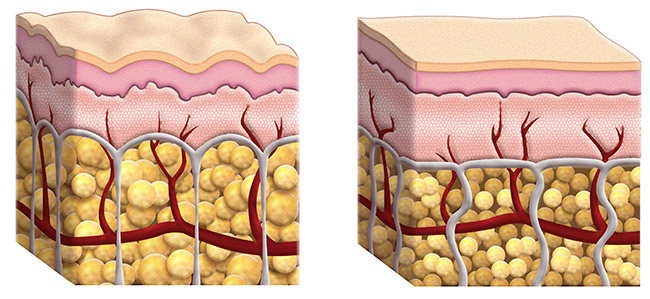 Cellulite – Left, Smooth Skin – Right