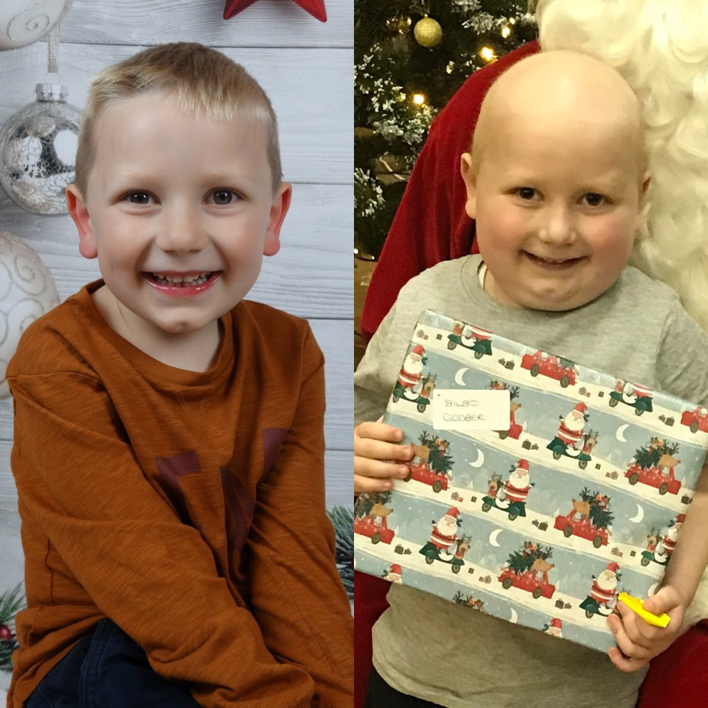 godberstravel, #Donate4Bilbo, Bilbo, childhoodcancer, cancer, leukemia, CLICSargent, giveblood, gofundme, bilbosjourney, our new normal, before and after