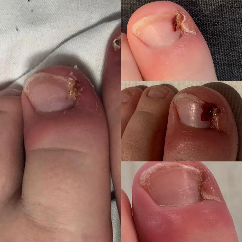 Poorly toes in December
